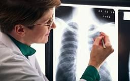 В Кривом Роге и области на 32% увеличено финансирование противотуберкулезных диспансеров