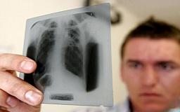 Больных туберкулезом госпитализируют в принудительном порядке