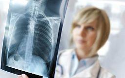 Сьогодні Україна відзначає Всесвітній день боротьби з туберкульозом