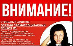 Мяч Шевченко, перчатки Кличко, костюм Зеленского уже сегодня купят криворожане на аукционе