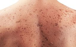 Спастись от рака кожи. В течении недели обследования в Кривом Роге бесплатны