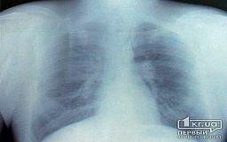 Туберкулез - не приговор: Как уберечь себя от болезни?