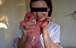 В Днепропетровске две медсестры устроили фотосессию с недоношенными младенцами