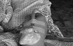 В Кривом Роге умерла пациентка с подтвержденным COVID-19