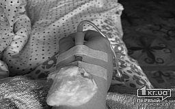 В криворожской больнице умер мужчина с коронавирусом