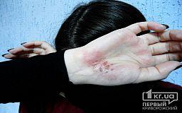 Более 1000 криворожан состоят на учете за совершение домашнего насилия