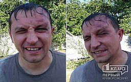 В Кривом Роге на депутата горсовета напали неизвестные