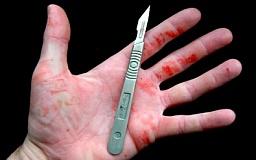Криворожанин со скальпелем ограбил подростка