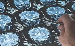 Пациенты в Кривом Роге месяцами не могут сделать МРТ