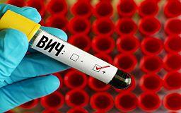 Нові стандарти: в Україні затвердили новий клінічний протокол лікування та профілактики ВІЛ-інфекції