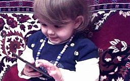 Криворожан просят помочь 2-летней Злате, которая обожглась кипятком