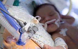 Треть аппаратов ИВЛ из 17 аппаратов в криворожской больнице не работает