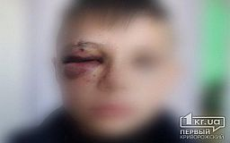 Криворожанин избил ученика школы, в которой учится его сын