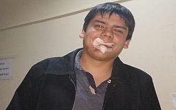 Криворожский лидер автомайдана заявил, что его били полицейские