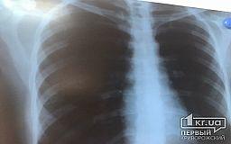В області майже у кожного четвертого пацієнта з туберкульозом виявляють СНІД