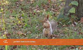 Зла, коли голодна: у парку Мершавцева дитину покусала білка